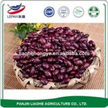 kidney beans - product's photo
