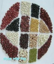 red/white/black/light speckled kidney beans. - product's photo