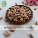 light speckled kidney beans - product's photo